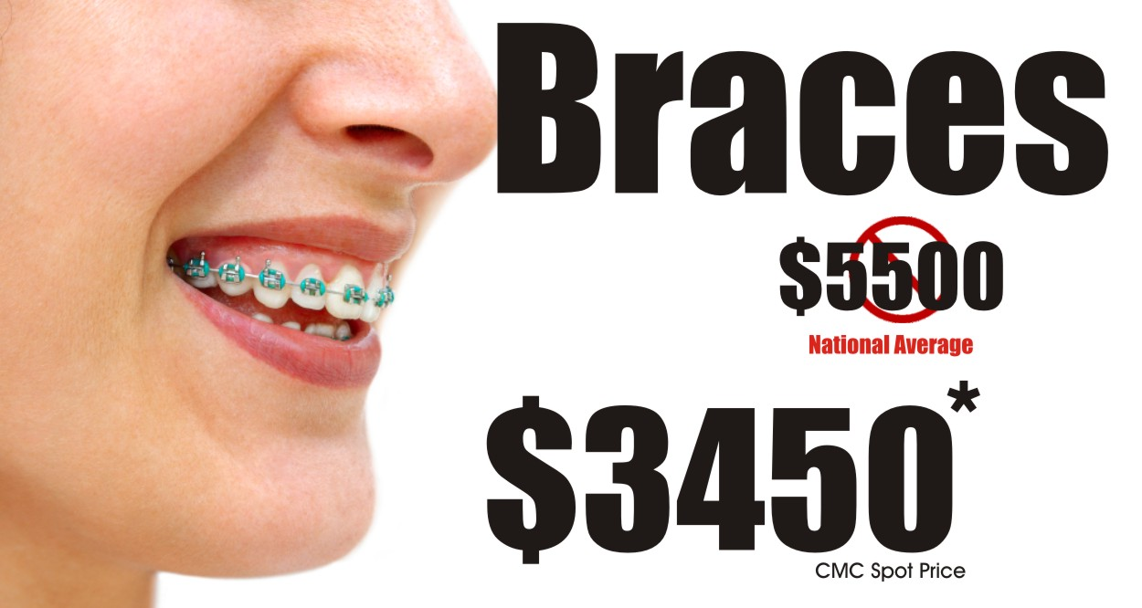The 5-Minute Rule for Affordable Braces