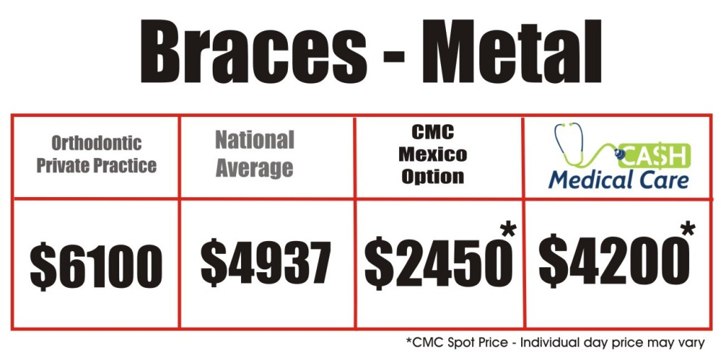 Braces Price Matrix