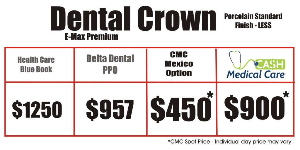 Crown Price Matrix