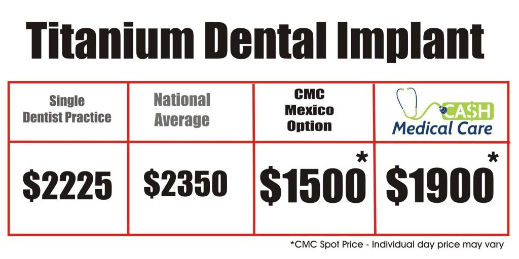 Titanium Dental Implant